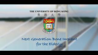 Knowledge Exchange Video: Next Generation Bone Implant for the Elderly